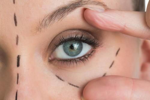 التجاعيد حول العين: طرق ازالتها