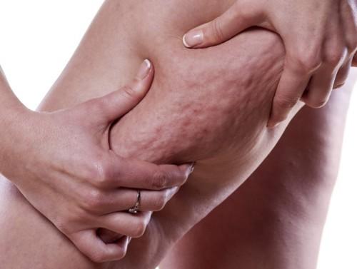 علاج سحري للتخلص من السيلوليت!