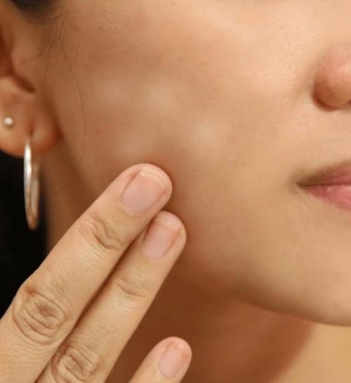 4 طرق طبيعية لإزالة البقع البيضاء على البشرة