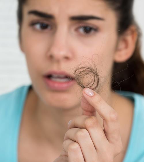 ما سبب تساقط شعري بغزارة؟