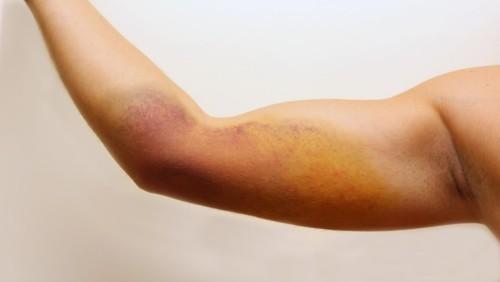 ما هو التهاب النسيج الخلوي؟