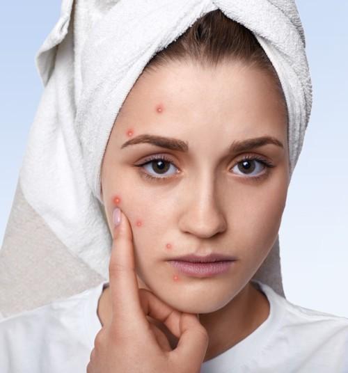 6 علاجات منزلية لإزالة علامات البثور المزعجة