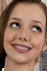 آخر صيحات الموضة.. أنق أسنانك على حسب ملابسك ومزاجك!