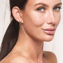 البقع الداكنة على الجلد: أسبابها وطرق علاجها