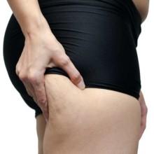 3 علاجات طبيعية تخلّصكِ من السيلوليت